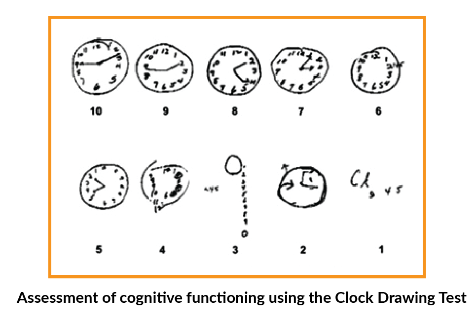 Clock Drawing Test - Assessment for Cognitive Function