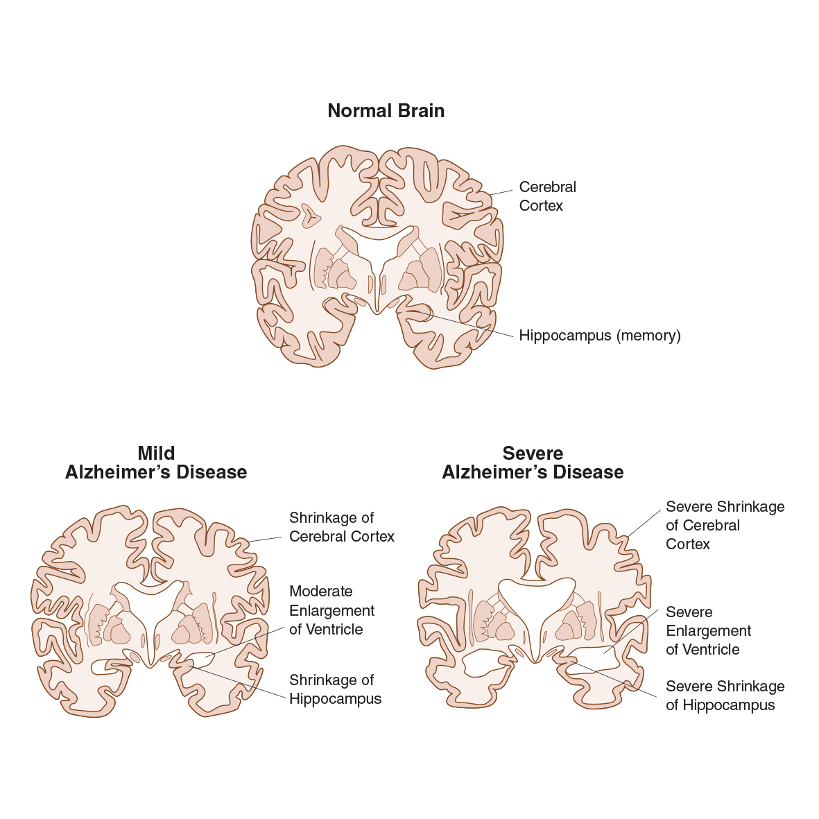 normal-mild-severe-alzheimer-brain