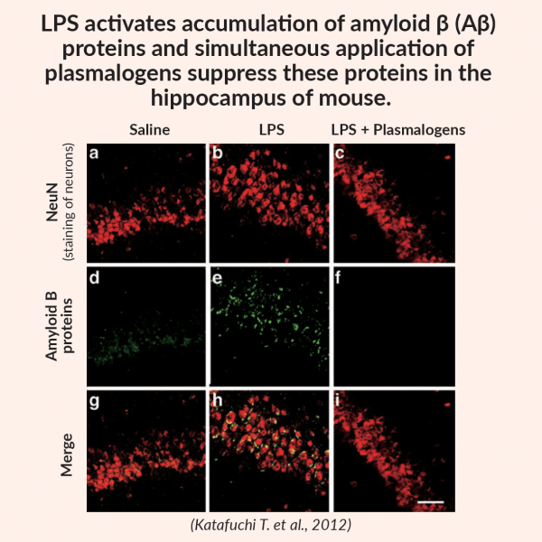 actions of plasmalogens - suppress amyloid β proteins in the hippocampus of mouse