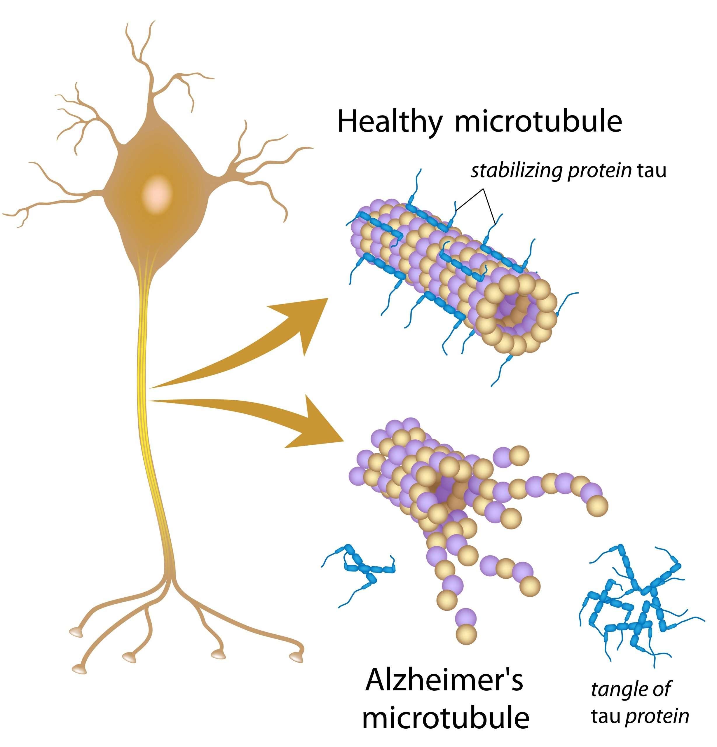 Alzheimer's microtubule